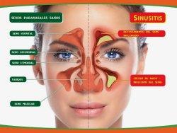 Sinusitis. Acumulación de moco en los senos nasales. Tratamiento Ayurvédico.